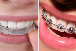 removable teeth braces
