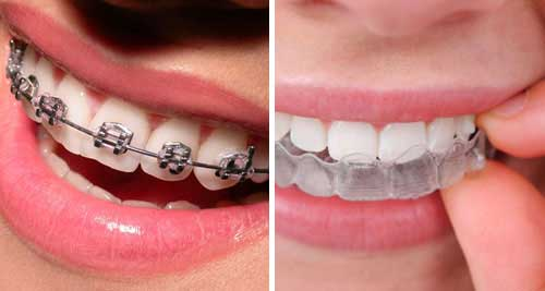 Dental Braces Teeth Braces Cost Procedure Types