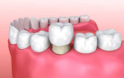 Dental Crown And Dental Bridges Cost Zirconia Crowns Ceramic Crowns