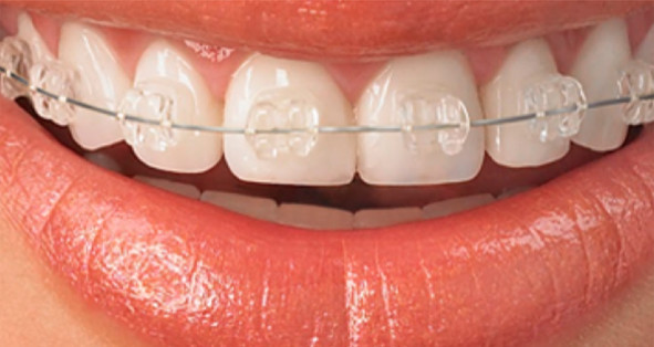 Ceramic transparent braces