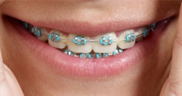 metal wire braces