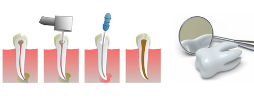 Fillings, Root Canal Treatment