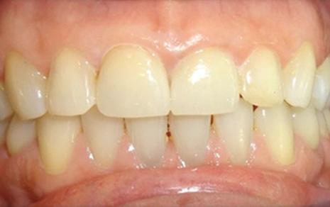 Cosmetic Dentist Delhi