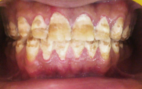 Crowns Dental Treatment