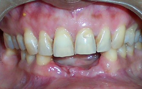 Dentures Replacement Treatment