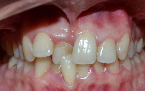 aligners for irregular teeth