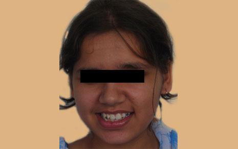 teeth aligners