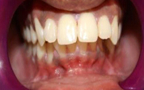 Orthodontics Braces Treatment