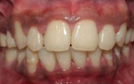 transparent dental braces