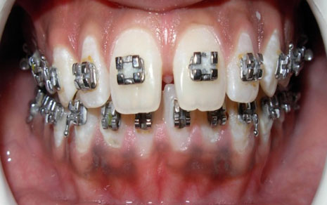 metal braces treatment