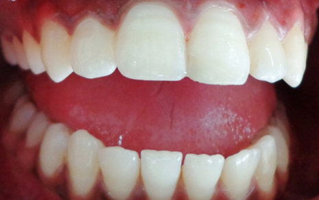 teeth scaling and polishing