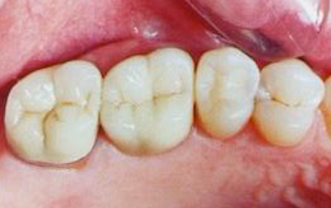 Silver Dental Filling