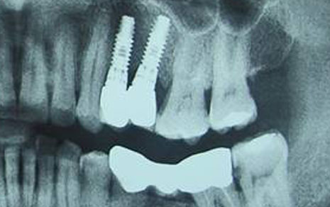 dental implants clinic india