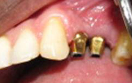 Multiple Teeth Implant Treatment
