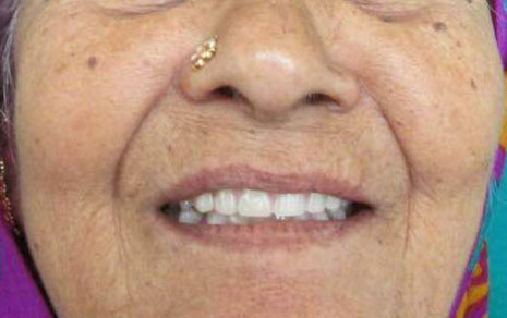 Full Mouth Implants Treatment