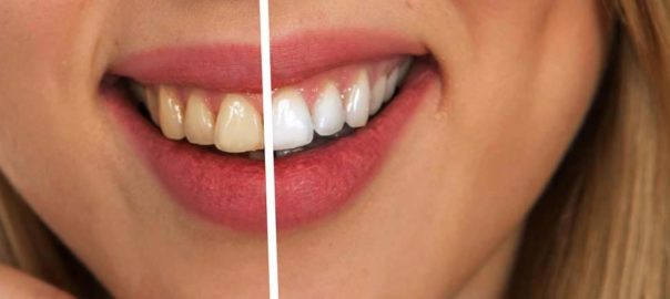 WHITER TEETH? LET'S KNOW ABOUT IT….
