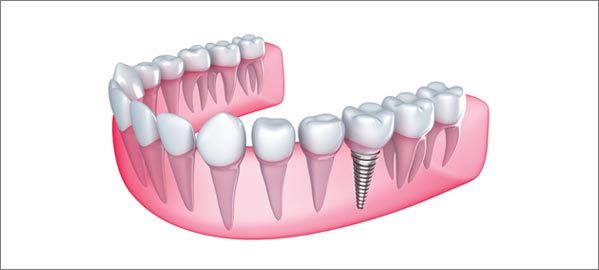 Can Anyone Get Dental Implants