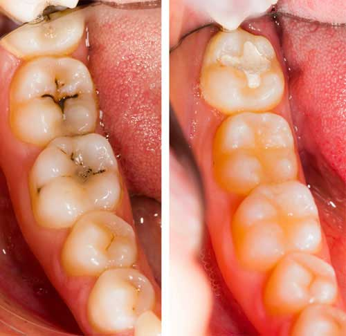 Dental Filling And Tooth Cavity Filling Cost Treatment Causes